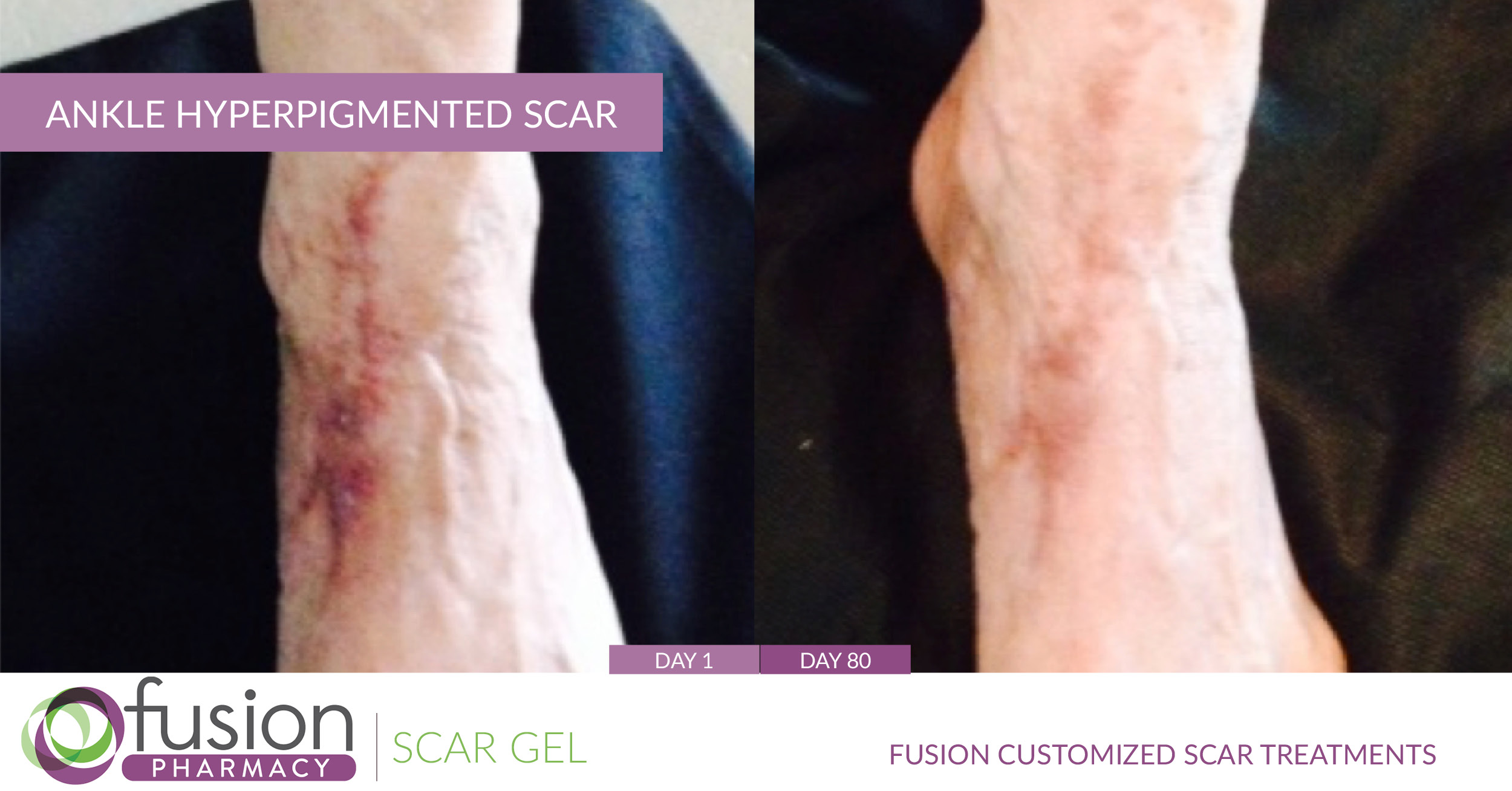 Hyperpigmented Scars Scar Gel Fusion Pharmacy