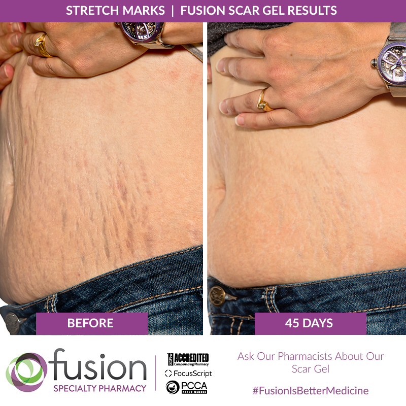 Stretch Marks Care Fusion Pharmacy
